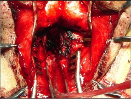 Posterior Urethra